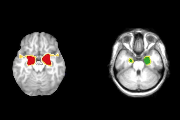 Le nombre de nouveaux cas d'Alzheimer et autres démences diagnostiqués diminue, selon une étude réalisée auprès de la cohorte américaine de Framingham, publiée le 11février dans le New England Journal of Medicine. Mais le nombre total de personnes atteintes ne va pas diminuer. Les démences touchent environ 47,5millions de personnes, selon l'OMS, et devraient atteindre 75millions d'individus en2030, en raison de l'absence de traitement pour freiner la maladie et du vieillissement de la population.