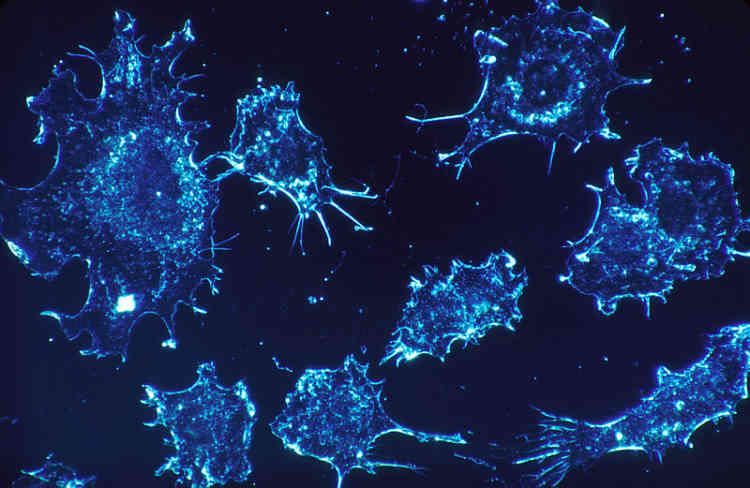 <b>C'est quoi ?</b> Attaquer les cellules cancéreuses directement dans l'organisme, aux premiers stades de la maladie, ou prévenir les crises cardiaques : ce sont les deux prinicipales applications de ce projet de nanorobots, que l'on avale comme une pilule. <br> <b>Où en est l'idée ?</b> Présenté en 2014, le projet semble avoit été mis de côté : il ne figure pas sur le site officiel de Google X, et aucun développement n'a été signalé depuis la conférence durant laquelle il avait été présenté.